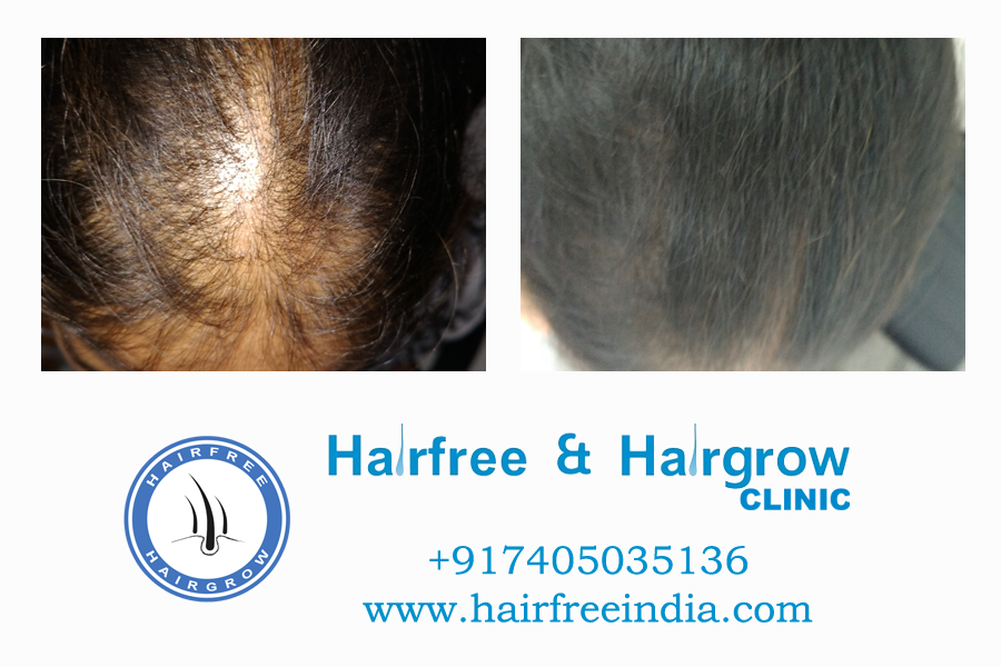 Hair transplant cost in india ahmedabad